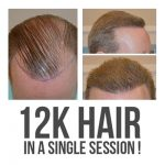 12,000 plus follicles implanted for a complete transformation, in just 11 hours!