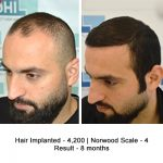 Hair Transplant Results of a Celebrity Hair Stylist - DHI International