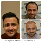 DHI Hair Transplant Journey of a Young Business Owner